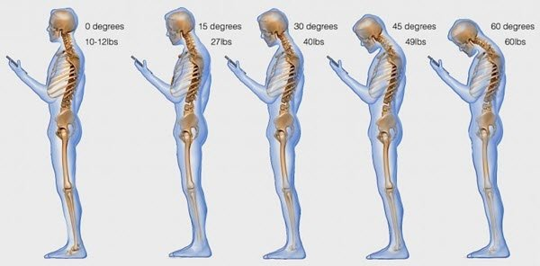 Health problems caused by Smartphones